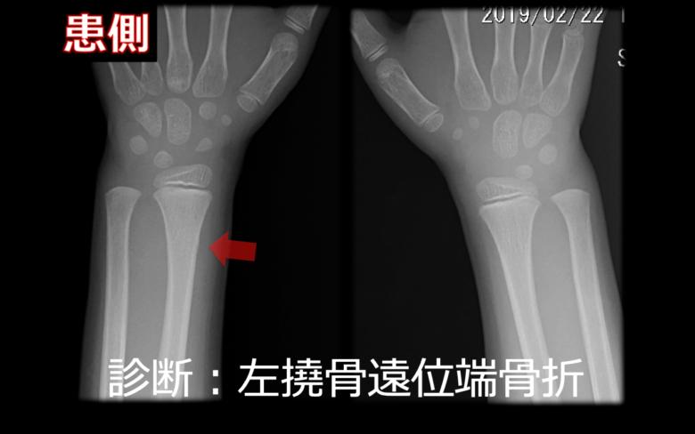 骨折 位 橈骨 遠 端